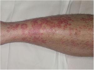 Enfermedad de Majocchi. Lesiones rojo-violáceas de morfología anular en extremidad inferior.