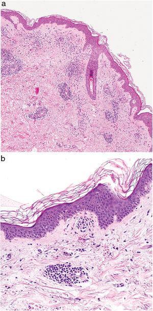 Imagen histopatológica de enfermedad de Schamberg. a) Infiltrado localizado a nivel de los vasos de pequeño calibre en dermis superficial. b) Infiltrado linfohistiocitario, con estrechamiento de las luces vasculares, y extravasación de hematíes.