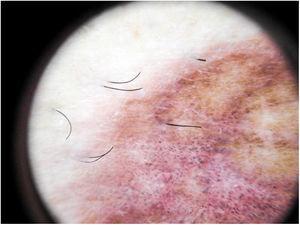 Dermatoscopia de liquen aureus. Fondo rojo-parduzco, con puntos grises y pseudorretículo pigmentado.