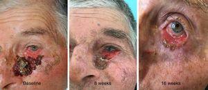 Regresión clínica del carcinoma basocelular en el párpado inferior izquierdo durante la terapia con vismodegib.