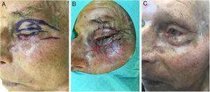 Etapas intraoperatorias con escisión de la lesión residual sospechada en el párpado inferior y reconstrucción con un colgajo de Tripier modificado del párpado superior (A, B) y resultado posquirúrgico a los 6 meses (C).