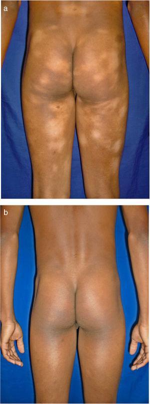 Máculas hipopigmentadas en zonas no fotoexpuestas. En esta serie, la variante hipopigmentada fue la forma más frecuente de la micosis fungoide. A) Antes de iniciar tratamiento. B) Posterior a PUVA.
