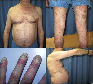 Placas eritematosas y con descamación gruesa moderadamente infiltradas en tronco, extremidades superiores e inferiores. Inflamación periungueal con afectación ungueal en forma de traquioniquia, hiperqueratosis, manchas de aceite y onicólisis.