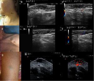 a) Caso 1: presentación clínica en forma de nódulo subcutáneo de 10mm diámetro con superficie azulada, localizado en la región mandibular izquierda. b) Examen ecográfico en modo B. Lesión hipoecoica bien definida, homogénea localizada en dermis con puntos hiperecoicos sin sombre acústica posterior. c) Examen ecográfico modo Doppler color. Mínimas áreas vasculares localizadas en el interior de la lesión. d) Caso 2: presentación clínica en forma de masa subcutánea de 20mm de diámetro, sin alteraciones epidérmicas, localizada en región pectoral derecha. e) Examen ecográfico modo Doppler color. Lesión hipoecoica, homogénea, bien delimitada, localizada en tejido celular subcutáneo. f) Examen ecográfico modo Doppler color. Vascularización moderada en el interior de la lesión. g) Caso 3: presentación clínica. Lesión subcutánea de 1cm de diámetro con la epidermis suprayacente ligeramente verde-azulada. h) Examen ecográfico en modo B. Lesión hipoecoica localizada en dermis, bien delimitada. i) Examen ecográfico modo Doppler color. Vascularización intralesional y perilesional prominente.
