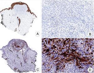 Ausencia de inmunotinción difusa para AE1-AE3 (A,B) y focal para actina muscular lisa (C,D) (A, ×10; B, ×200; C, ×10; D, ×200).