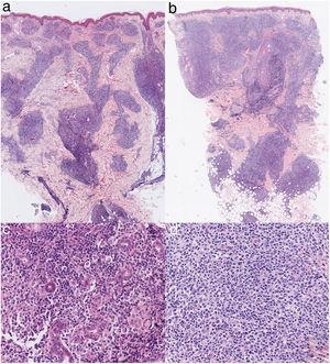 En la lesión cervical (a) y en la lesión de mejilla izquierda (b), infiltrado linfohistiocitario en dermis e hipodermis con tropismo por anejos y ausencia de epidermotropismo (H&E ×2). En la lesión cervical (c) y en la lesión de mejilla izquierda (d), infiltrado compuesto por células pleomórficas con atipia leve-moderada (H&E ×20).