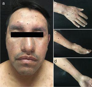 Imagen clínica nuevas lesiones. Pápulas violáceas, infiltradas, algunas escoriadas y costradas en cara (a) y área distal de las extremidades superiores (b-d).