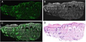 Imagen de piel normal en diferentes modos: A) fluorescencia; B) reflectancia; C) fusión; D) hematoxilina y eosina digital.