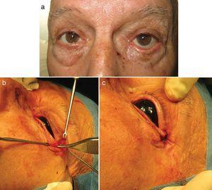 Cantopexia. a) Ectropión posquirúrgico mixto (involutivo y mecánico secundario a retracción del injerto empleado para la reconstrucción tras la extirpación de un carcinoma basocelular). b) Liberación del tejido retráctil y realización de incisión de 1cm a 0,3-0,5cm del canto externo y disección hasta localizar el ligamento cantal externo. c) Fijación del ligamento cantal a la cara interna del periostio del reborde orbitario mediante sutura monofilamento reabsorbible de 5/0.
