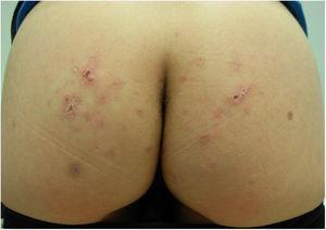 Mejoría de las lesiones cutáneas tras el tratamiento con albendazol.