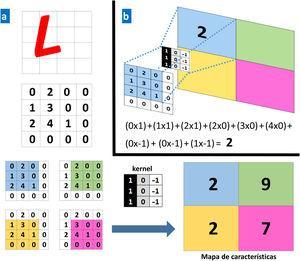 a. Ejemplo de una operación convolucional. Un ordenador ve una imagen (L) como una matriz de números de 4×4. Cada valor de la imagen de entrada se multiplica por un filtro o kernel. Como resultado se obtiene una nueva representación reducida (mapa de características de 2×2). b. Ejemplo de una operación concreta para los valores en el recuadro azul.