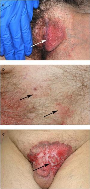 a) Aspecto clínico de la EPEM en el labio mayor izquierdo de la vulva. b) EPEM en el pubis y la región inguinal con 2 áreas aparentemente separadas por piel sana. c) EPEM en el pubis de larga evolución sobre la que se ha desarrollado una lesión tumoral.