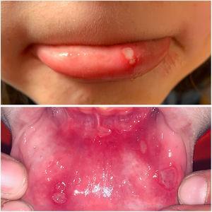 Imagen de aftas minor en labio y mucosa de labio inferior.