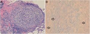 A) Mediante la tinción de hematoxilina-eosina se observan, en la dermis reticular e hipodermis, granulomas bien conformados constituidos por histiocitos con linfocitos en la periferia. B) Utilizando al tinción de Fite-Faraco se observan bacilos ácido-alcohol resistentes.