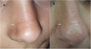 En el lado izquierdo (A) se observa la nariz de nuestra paciente y en el lado derecho (B) el aspecto de la nariz de su madre.