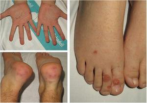 Lesiones redondeadas purpúricas predominando en las plantas o los talones.