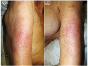Presentación clínica: placas mal definidas, eritematosas e infiltradas, localizadas en la superficie extensora del brazo derecho (a) e izquierdo (b) del paciente, que además eran dolorosas a la palpación.