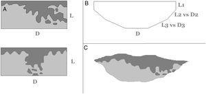 A)Si las piezas fueran extirpadas con ángulos rectos, entonces la distinción entre bordes laterales y profundos sería nítida y sin problemas. De igual manera sería fácil distinguir entre borde lateral afecto (arriba, L) y borde profundo afecto (abajo, D). B)Las piezas extirpadas suelen tienen un margen lateral que se angula para confluir con el margen profundo. El punto exacto en el que un margen lateral pasa a ser profundo es controvertido. Así, L1 parece un borde lateral claro y D parece un borde profundo claro, pero ¿deberíamos indentificar a L2 y L3 como bordes laterales o como bordes profundos (D2, D3)? C)El margen afecto en esta biopsia es difícil de definir como lateral solo, profundo solo o una combinación de ambos.