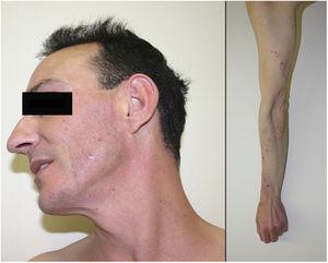 Excoriaciones sobre base eritematosa en región cervicofacial.