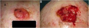 Carcinoma de células escamosas en cuero cabelludo con un crecimiento en 3 meses que pasó de 25 a 42mm.