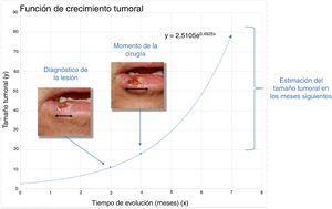 Función exponencial del paciente 1 con carcinoma de células escamosas.