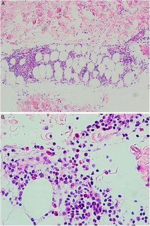 A) A mayor aumento se advierte un infiltrado en el tejido celular subcutáneo de patrón predominantemente lobulillar. B) El infiltrado está compuesto por linfocitos, histiocitos y numerosos eosinófilos.