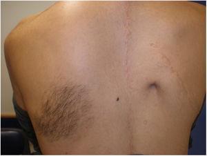 Mácula hiperpigmentada sobre la cual asienta vello situada a nivel escapular izquierdo. Obsérvese cicatriz quirúrgica adyacente, dado su antecedente de escoliosis severa.