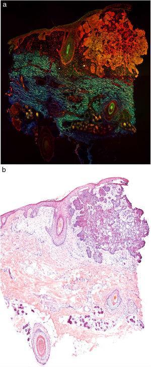 Carcinoma basocelular estudiado mediante microscopía confocal de fluorescencia a color (a). Nótese la correlación con las imágenes de hematoxilina-eosina clásicas (b).