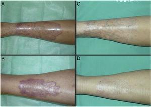 Caso 1. Mujer de 21 años, afecta de DM1 y necrobiosis lipoídica de largo tiempo de evolución (72 meses). Aspecto de las lesiones al inicio (A y B) y tras finalizar el tratamiento con TFD convencional con MAL (C y D).