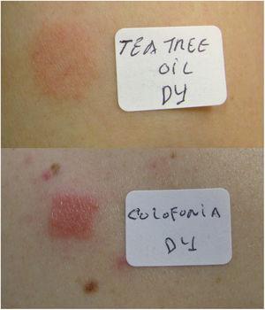 Pruebas epicutáneas positivas (D4) para el aceite del árbol del té y para la colofonia (caso 2).