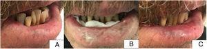 Paciente 4. A) Situación inicial del paciente antes del tratamiento con afectación del 75% de la superficie del labio inferior (lateral derecho y región central). B) Imagen del paciente con la crema de aminolevulinato de metilo aplicada y gasa en cara posterior del labio inferior. C) Imagen del paciente a las 8 semanas del tratamiento. Resolución completa de las lesiones.