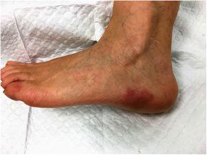 Placas eritematovioláceas bien definidas en el lado exterior del pie izquierdo.