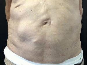 Resolución completa de la pseudohernia tras 8 meses de seguimiento.