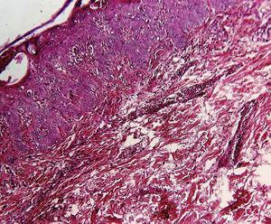 Histología de la piel que muestra microabscesos en el estrato córneo con queratinocitos necróticos e infiltrado inflamatorio perivascular y perianexial (aumentos originales 100x, tinción de hematoxilina-eosina).
