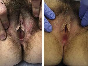 A) Piel blanquecina, liquenificada con placas hipertróficas en labios menores antes del tratamiento. B) Mejoría del color y textura de la piel de labios menores tras cuatro sesiones.