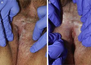 A) Antes del tratamiento. B) Después de cinco sesiones mejoría de la elasticidad de la piel y disminución de las erosiones.