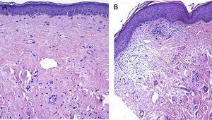 A) Imagen pretratamiento con atrofia epidérmica, colágeno esclerótico e hialinización homogénea de la dermis (519,7μm). B) Después del tratamiento aumento del espesor de la epidermis y más irregular, disminución del espesor de la banda hialina subepidérmica, dermis laxa con mayor celularidad y menos hialinizada (376,5μm).