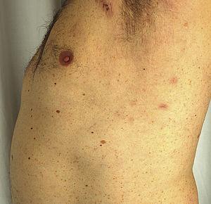 c) Máculas residuales en axila izquierda correspondientes a lesiones de dermatosis pustulosa subcórnea a las tres semanas del inicio del tratamiento con adalimumab.