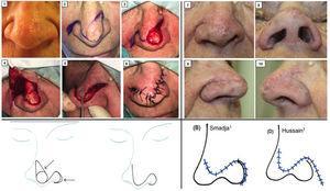 Imágenes clínicas que muestran la técnica quirúrgica para la realización del colgajo crescéntico nasoyugal (1-6) y resultado posquirúrgico al mes (7-10). Abajo izq: Imagen del artículo de Smadja1 donde se objetiva el esquema del colgajo crescéntico nasoyugal. Abajo derecha: Imagen del artículo de Hussain7 donde se observan las cicatrices resultantes tras la realización del (B) colgajo crescéntico nasoyugal1 y (D) colgajo en onda sinusoidal7.