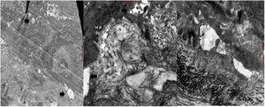Microscopia electrónica (caso 1). Cortes ultrafinos seriados de 100nm de espesor mostrando ampollas (flechas) a diferentes niveles de la unión dermo-epidérmica, con desmosomas y fibrillas de anclaje sin alteraciones.