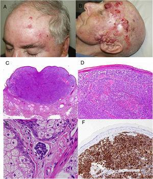 A) Satelitosis en un paciente con CCM en el postoperatorio inmediato tras la cirugía del tumor primario. B) Paciente con CCM avanzado localmente. C-F) Estudio histopatológico de un CCM; CK20 con marcaje en gota paranuclear.