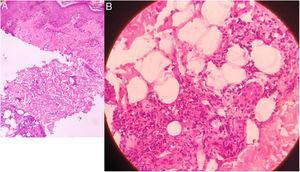 En la histopatología se muestra una infiltración de neutrófilos, linfocitos y células plasmáticas a nivel de la unión dermoepidérmica. En la profundidad de la dermis se observa además la presencia de granulomas de células epitelioides y necrosis fibrinoide, asociado a un infiltrado inflamatorio de neutrófilos, linfocitos, macrófagos y células plasmáticas (A: aumento original ×100; B: aumento original ×400; tinción con hematoxilina/eosina).