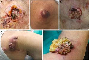 Imágenes clínicas de cinco de los tumores cutáneos incluidos en el estudio. A) recidiva de carcinoma de células escamosas con invasión perineural clínica, localizado en la mejilla. B) Melanoma de extensión superficial de 7,70 mm de Breslow localizado en la rodilla. C) Carcinoma de células escamosas infiltrante de 6,5 mm de espesor, localizado en la mejilla. D) Recidiva de carcinoma de células de Merckel localizado en el hombro derecho. E) Carcinoma verrucoso de 5 cm de diámetro localizado en la rodilla.