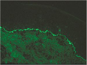 Con el microscopio de inmunofluorescencia directa se observa un depósito lineal de IgG a lo largo de la unión dermoepidérmica.