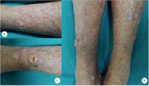 Pápulas y placas eritematovioláceas, hipertróficas, de morfología poligonal (A). Xerosis cutánea y signos de insuficiencia venosa crónica (A-B). Lesión tumoral de aspecto crateriforme con zona central hiperqueratósica en la región pretibial derecha (B-C).