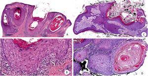 Hiperplasia epidérmica con acantosis, papilomatosis e hiperqueratosis (A-B). Pérdida focal del estrato basal con discreto infiltrado linfocitario (B). Tumoración escamosa, infiltrante y crateriforme (C). Masas dérmicas constituidas por queratinocitos de citoplasma amplio y eosinófilo pálido con discreta atipia nuclear (D) (H-E: A, ×4; B, ×10; C, ×4; D, ×10).