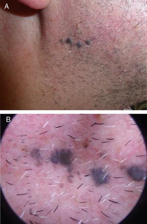 A) Cuatro pápulas de 3-4mm de diámetro, de coloración azulada, con lesiones satélites milimétricas. B) Patrón azul homogéneo en la dermatoscopia.