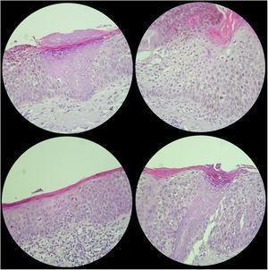 Imágenes histopatológicas de la lesión.