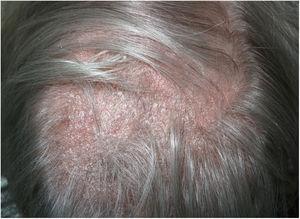 Placa de alopecia con descamación difusa y eritema de base.
