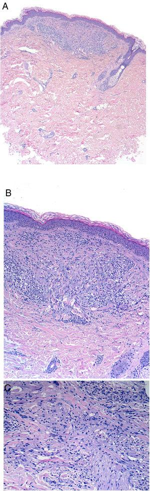 Histología de las pápulas neoformadas tras fotoprovocación. A) Infiltrado dérmico de tipo intersticial bien circunscrito. A pequeño aumento no se observan granulomas ni afectación epidérmica (tinción de hematoxilina-eosina ×2, magnificación ×20). A mayor detalle se observa que dicho infiltrado es de tipo linfohistiocitario, con un componente importante de células de citoplasma grande que envuelven los haces colágenos con un patrón de dermatitis granulomatosa intersticial (tinción de hematoxilina-eosina ×10, magnificación ×100). C) A gran aumento no se observan imágenes de elastofagocitosis, descartando el diagnóstico de granuloma actínico (tinción de hematoxilina-eosina ×20, magnificación ×200).